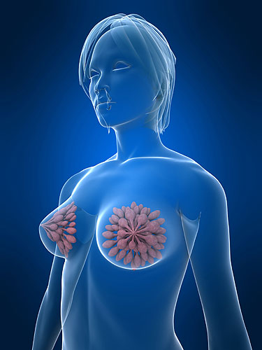 reconstrução das mamas câncer