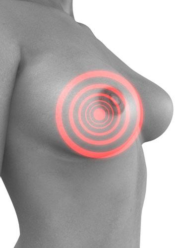 tumor câncer de mama mulher